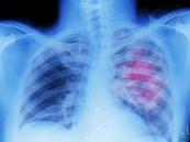 """دراسة مثيرة للقلق: واحد من كل مائة مريض بـ""""كوفيد-19″ يعاني من ثقب في الرئة"""