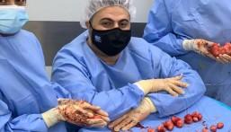 في عملية نوعية بالأحساء … فريق طبي يُخلّص مريضة من 34 ليف في رحمها