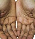 علامة في كف اليد قد تشير إلى مرض قاتل