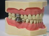 """""""قفل للأسنان"""" .. جهاز جديد لإنقاض الوزن"""