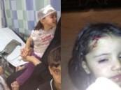 """""""إثيوبيو منفوحة"""" يهاجمون عائلة سعودية ويشجون رأس طفلة بسيخ حديد"""