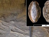 اكتشاف حالة إصابة بالسرطان ترجع إلى 3000 عام