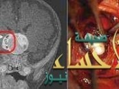 """غرائب العثور على""""سن بشري"""" ينمو في دماغ رضيع"""