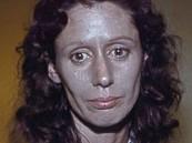 بسبب قطرة أنف : امرأة تتحول إلى اللون الفضي للأبد
