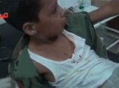 """بالفيديو.. طفل سوري مصاب لـ""""أمه"""": لا تخافي ما فيني شئ"""