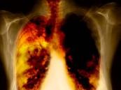 فحص الرئة الدوري ضروري للمدخنين الحاليين والسابقين