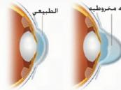 دكتور سعودي يتوصل لعلاج جديد للقرنية الضعيفة