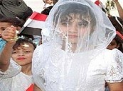 عروس الثامنة اليمنية على قيد الحياة