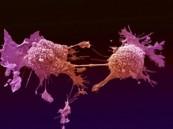 اكتشاف طريقة لعلاج أحد أنواع سرطان الدم