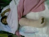 إصابة طفلة ثلاث سنوات برضوض  وكسر مضاعف في الفخذ  نتيجة دهسها من قطار بمدينة العاب  بمجمع الأحساء مول التجاري مساء اليوم .