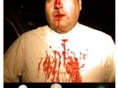 رئيس تحرير صحيفة ( الآن  ) الكويتية يتعرض لضرب مبرح بعصا غليظة .