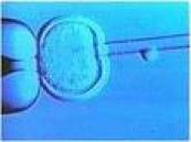 أول ولادة خليجية ببويضة مجمدة في دبي .