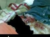 ( تحديث ) 15 غرزة للطفل مصاب السلم الكهربائي في مجمع العثيم التجاري .. ووالده يطالب بالتعويض .     .