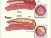 إكتشاف نوع آخر من الكوليسترول الرديء .