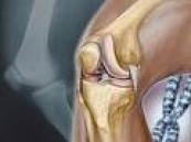 نسبة المصابات في الاحساء 3% : أربعون بالمئة من السعوديات مصابات بهشاشة العظام .