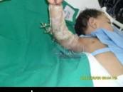 إنجاز آخر في مستشفى الملك فهد بالهفوف … إعادة زراعة ذراع رضيع بعد حادث سير