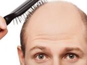 وسيلة طبية حديثة تجعل الشعر ينمو من جديد
