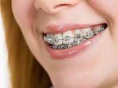 تقويم الأسنان .. ليس لأغراض جمالية فقط