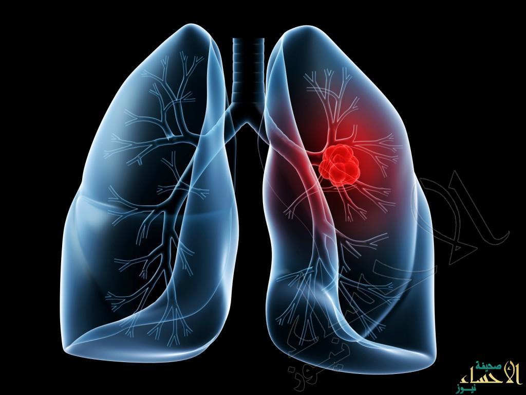 مليون و 600 ألف إصابة بسرطان الرئة سنوياً حول العالم