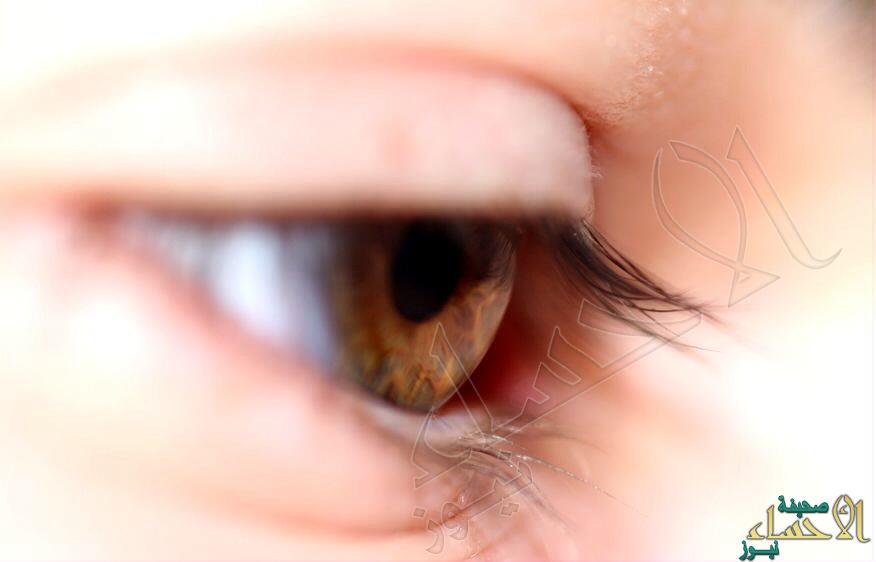 للتخلص من انتفاخات اسفل العين