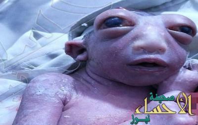 شاهد.. امرأة هندية تلد طفلة معجزة تشبه إحدى المخلوقات الفضائية !!