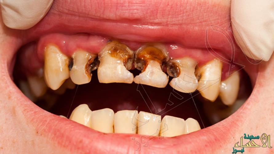 احترس.. هذه الأطعمة والعادات الغذائية الخاطئة تسبب تسوس الأسنان