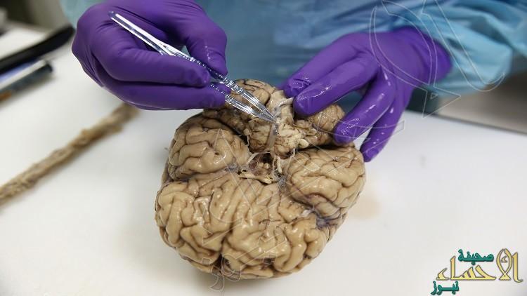لماذا لا ترتفع درجة حرارة الدماغ أثناء عمله ؟ اكتشف اللغز الآن