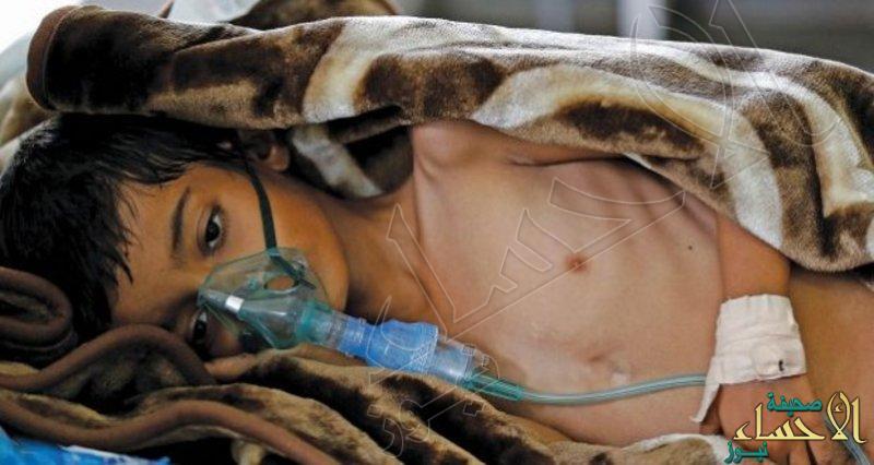 """ميليشيا الحوثي تنفذ نصائح خبراء إيران للاستفادة من وباء """"الكوليرا"""""""
