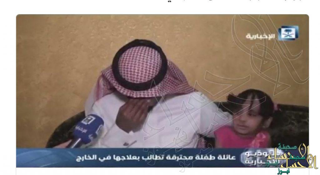 """بعد تعرضها لحروق متفرقة """"خالد بن فهد"""" يتكفل بعلاج الطفلة """"عائشة الغوينم"""""""