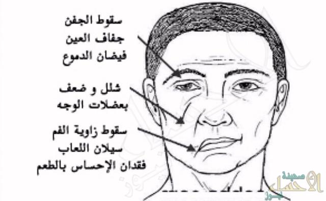 """إليكم.. أبرز أسباب الإصابة بــ""""شلل الوجه النصفي"""""""