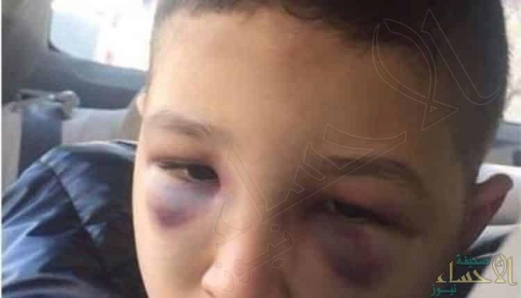 تفاصيل جديدة في قضية طفل السعودية المعنف.. وأول تعليق من سفارة المملكة بالأردن