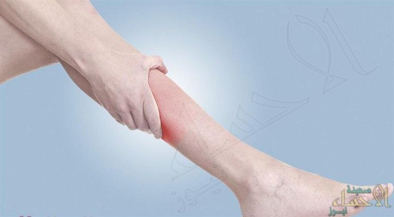 دراسة: طوال القامة أكثر عرضة للإصابة بدوالي الأوردة