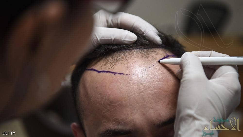 وفاة شخص في عملية زراعة شعر تحير الأطباء !!