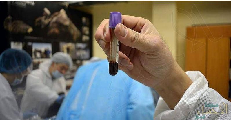 دم سائل بجثة عمرها 42 ألف سنة .. وآمال باستنساخ حيوان منقرض