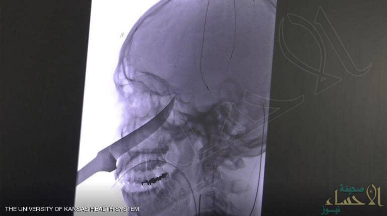 كيف نجا هذا المراهق من سكين طوله 25 سنتيمترا في الجمجمة!؟