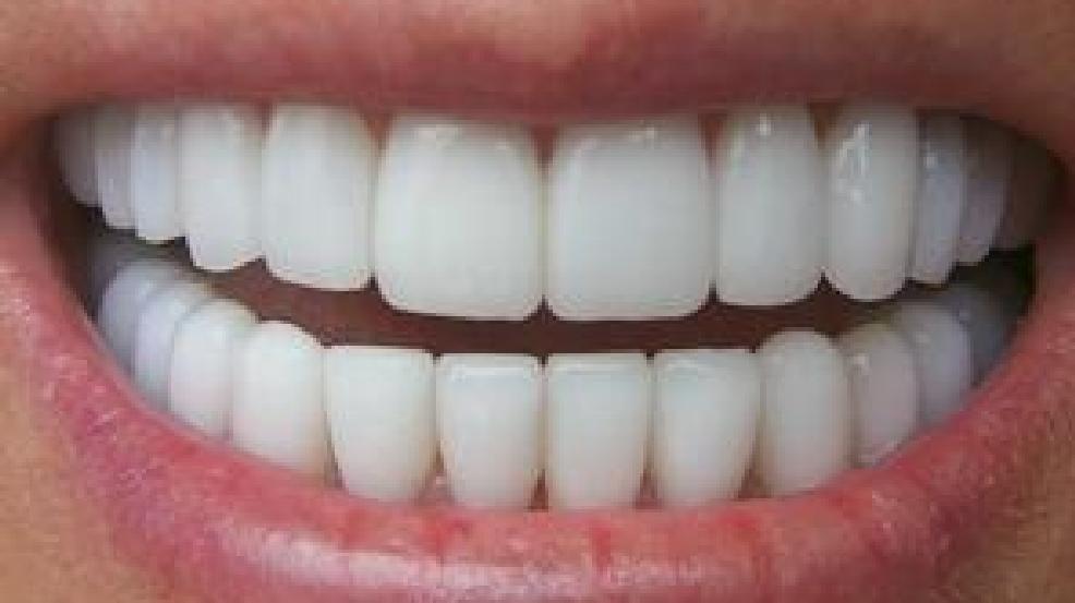 إليك أهم ٧ نصائح تحفظ بياض الأسنان