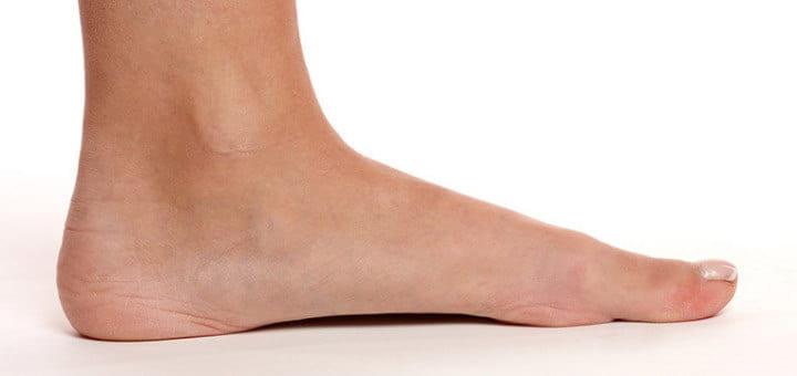 """لأصحاب """"القدم المسطحة"""".. 6 نصائح لتخفيف الألم"""