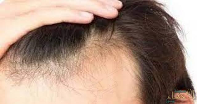 عصير طبيعي يحفز نمو الشعر خلال أسبوعين!