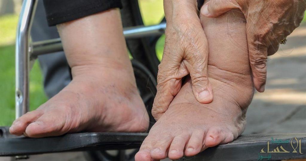 6 أسباب شائعة لتورم القدمين .. وهذه طرق العلاج